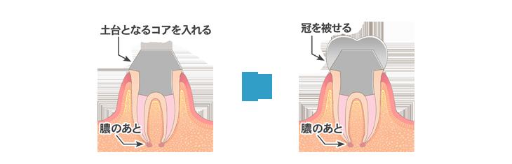 根管治療1